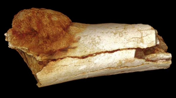 Oldest evidence of cancer in human family tree found