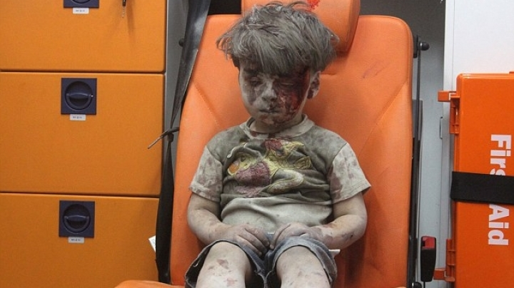 Horrors of war-ravaged Syria are exposed by image of wounded boy sitting alone in an ambulance