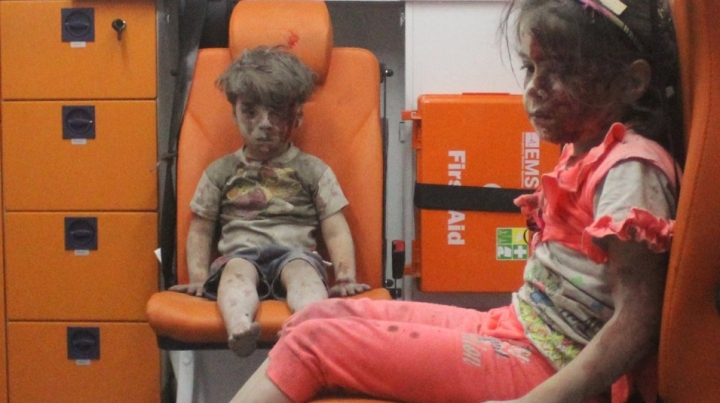Russia declines responsibility in injuring 5-year-old Syrian, whose photo went viral