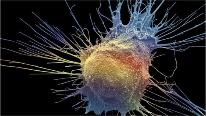 Study: Prostate cancer treatment not always needed