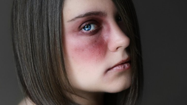 Ten years of Horror! Woman from Moldova, residing in Italy, lived with constant domestic abuse