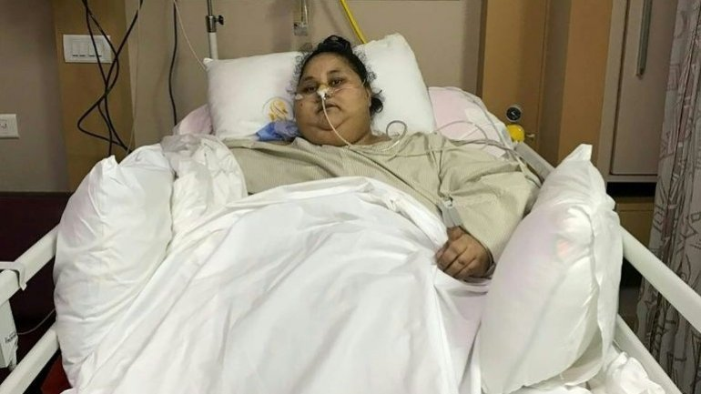 Egyptian woman, considered world's heaviest, successfully operated on in India
