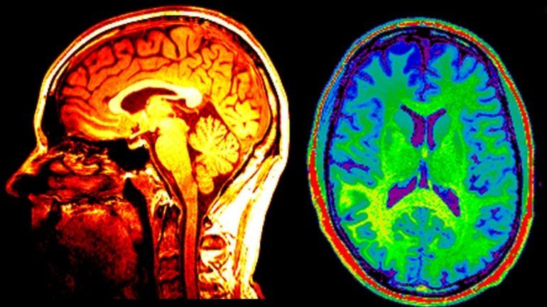 Brain lives on after body dies, new study finds