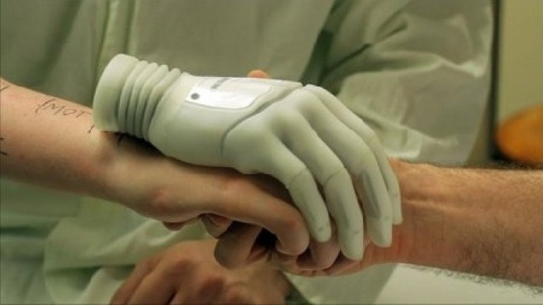 Young engineer from Capital offers 3D printed prosthesis for disabled people