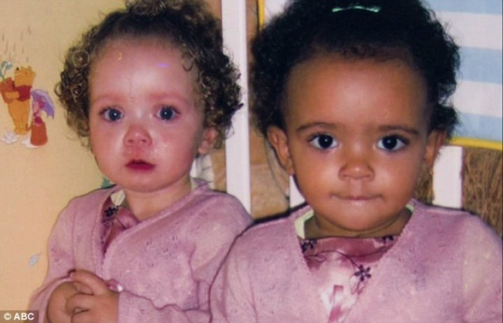 Striking set of twins born with different skin colors - one black and one white- are speaking out on their unique 'one-in-a-million' story