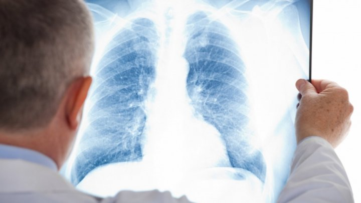 Five people including a child from Chisinau kindergarten no 203 diagnosed with TUBERCULOSIS