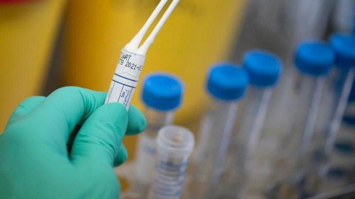 Coronavirus infection cases surge to 109 in Moldova