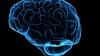 Rasismul porneşte din creier, declară o echipă de psihologi din Toronto