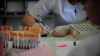 Canada: S-a anunţat primul caz de îmbolnăvire provocat de bacteria E.coli