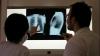 261 de copii din Donduşeni suspectaţi că ar fi bolnavi de tuberculoză.  Ei s-ar fi  infectat de la o educatoare