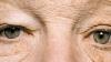 ULUITOR! Partea stângă a feţei unui bărbat a îmbătrânit de la expunerea prelungită la soare FOTO