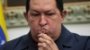Preşedintele Venezuelei este în stare stabilă, dar delicată, la trei săptămâni de la operaţie