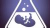 ISTORII REALE. Fertilizarea in vitro în Moldova - o procedură costisitoare şi fără prea multe şanse de succes