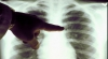 Bolnavii de tuberculoză, care refuză să se trateze, vor fi internaţi forţat