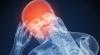 Crizele de epilepsie ar putea fi tratate cu ajutorul unui implant