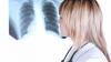 Societatea Italiană de Pneumologie: 30% din persoanele vindecate de coronavirus vor avea o perioadă însemnată probleme respiratorii cronice
