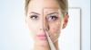 Şapte mituri despre acnee, desfiinţate de experţi. Cum puteţi scăpa de această problemă dermatologică?