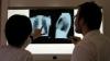 ALARMANT: În Moldova mor de tuberculoză de trei ori mai mulţi oameni decât în alte țări din Europa