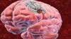 Creştere alarmantă a numărului de accidente vascular cerebrale în Moldova