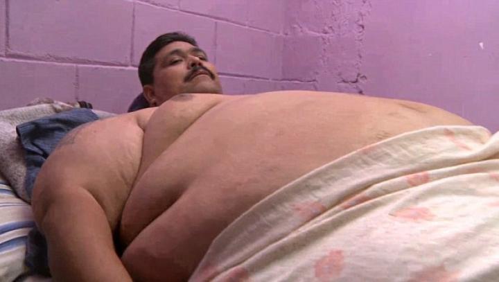 Micşorare de stomac. Cel mai obez om din lume a fost operat cu succes