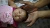 VIRUSUL ZIKA: Peste 20.000 de cazuri înregistrate în Columbia