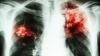 CIFRE ALARMANTE: Câți moldoveni se îmbolnăvesc ZILNIC de tuberculoză