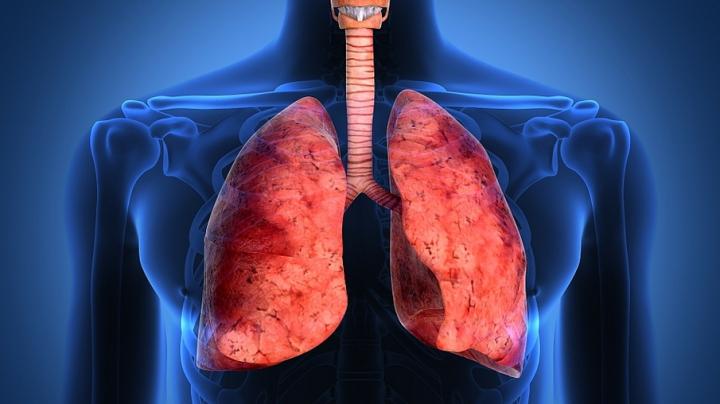 Nu trebuie să fii fumător ca să faci cancer pulmonar! PRINCIPALUL PERICOL se află lângă casa ta