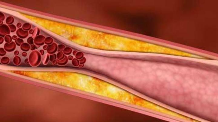 Secretul miraculos care te ajută să îţi reglezi colesterolul. Ce trebuie să mănânci