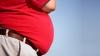 Obezitatea, o problemă globală. Ce loc ocupă Moldova în topul celor mai supraponderale națiuni