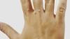 UTIL: Cel mai simplu tratament împotriva NEGILOR. Scapi de ei în mai puțin de o săptămână
