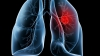 Uniunea Europeană a aprobat un nou tip de tratament anti-cancer