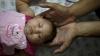 S-a născut primul copil cu Zika din Europa. În ce ţară se află