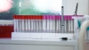 Planuri MARI la MAI: poliţia ar putea avea propriul laborator de genetică