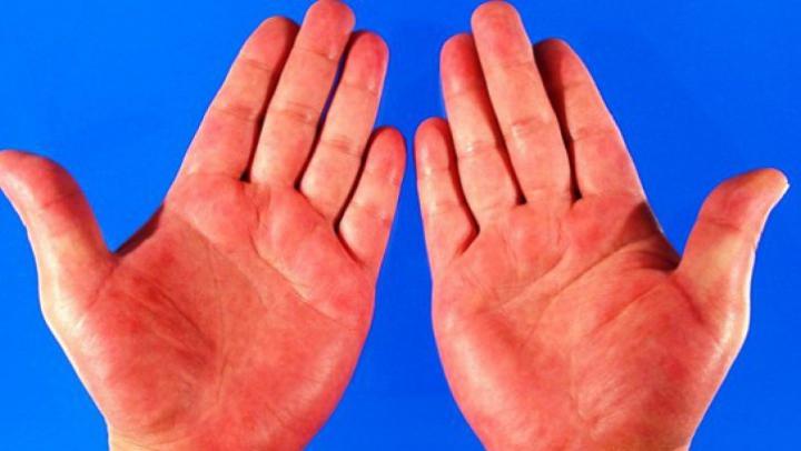 """BINE DE ŞTIUT! Aceste boli se """"citesc"""" în palmă. Află la ce trebuie să fii atent"""