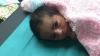 Povestea emoționantă a bebelușului ajuns simbolul a mii de oameni care luptă pentru supraviețuire