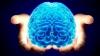 Studiu: Particule poluante au fost depistate în creierul uman