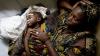 Yemen este ameninţat de un nou val major de cazuri de holeră