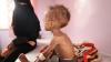 Dezastru umanitar, în Yemen. Zeci de mii de copii sunt PIELE şi OASE din cauza foametei