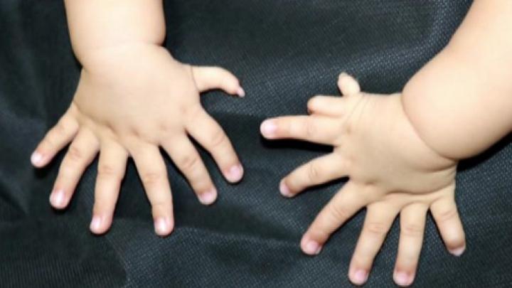 TERIFIANT! Un copil s-a născut cu 31 DE DEGETE (FOTO)