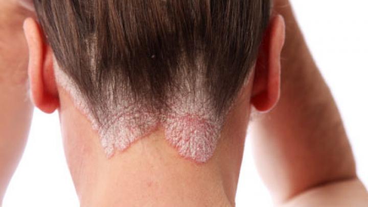 Suferi de psoriazis? Descoperă cele mai bune remedii pentru a îmbunătăţi starea pielii