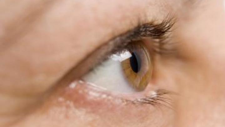 Au început să ţi se zbată involuntar pleoapele ochilor? Ai putea avea probleme grave de sănătate
