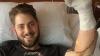 Poveste incredibilă: Un bărbat, supus unui transplant de braţe după ce şi-a pierdut membrele într-o explozie