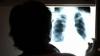 VESTE BUNĂ! A fost descoperit un nou tratament pentru pacienții diagnosticați cu tuberculoză