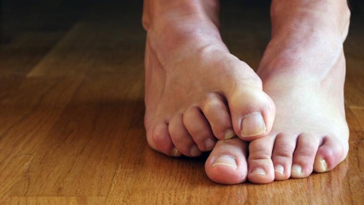 Totul ce trebuie să ştii despre ciuperca piciorului. Iată 4 modalităţi pentru a o combate natural