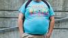 STUDIU: Obezitatea în perioada adolescentină afectează grav sănătatea oaselor