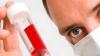 O nouă metodă de diagnostic a cancerului limfatic, descoperită de savanţii noştri