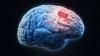 PREMIERĂ MONDIALĂ! A fost realizat primul IMPLANT pe creier