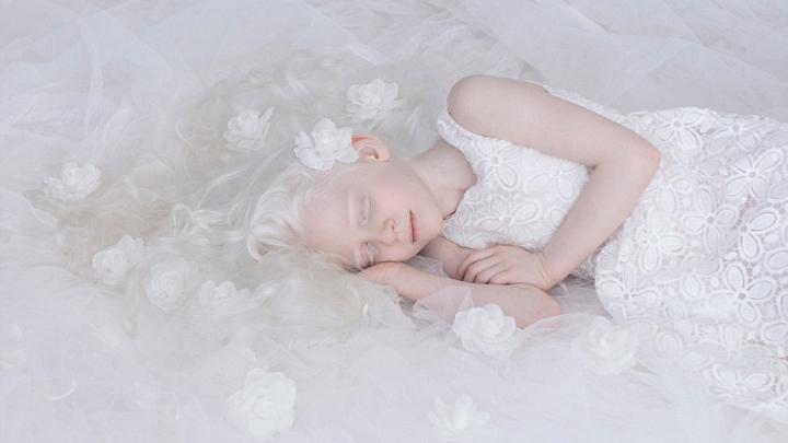 IMAGINI SUPERBE! Frumuseţea oamenilor albinoşi pare ruptă din basme (GALERIE FOTO)