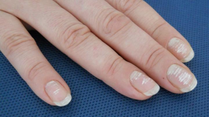 Ai pete albe pe unghii? Ai putea avea nevoie URGENT de un medic