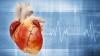 Zeci de bolnavi de aritmie cardiacă, trataţi printr-o metodă nouă apărută în Moldova